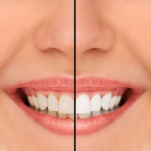 Ways A Smile Makeover Can Improve Your Life